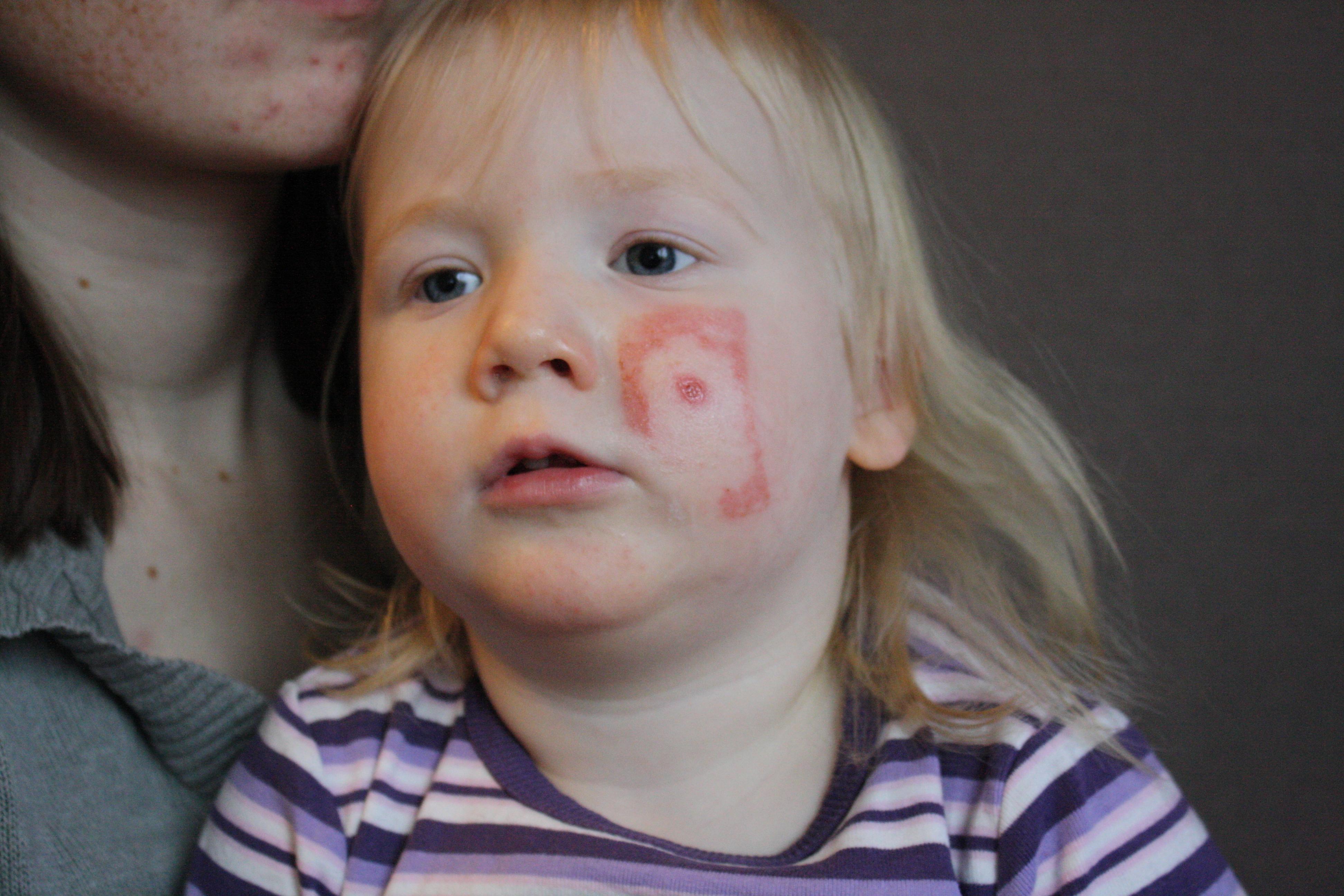 Molly är allergisk mot latex plåsterlim precis som jag. Att ha ett plåster  mer än några timmar innebär kraftig allergisk reaktion (extrem  trötthet matthet i ... 42d2bb6058c5d